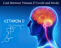 stroke and vit D